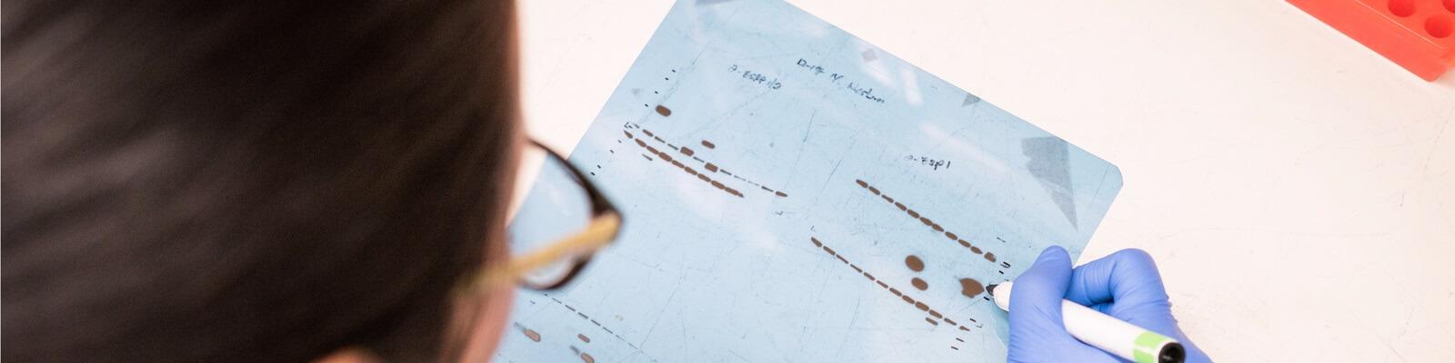 western blot, anticuerpos, electroforesis, revelado, análisis, proteína