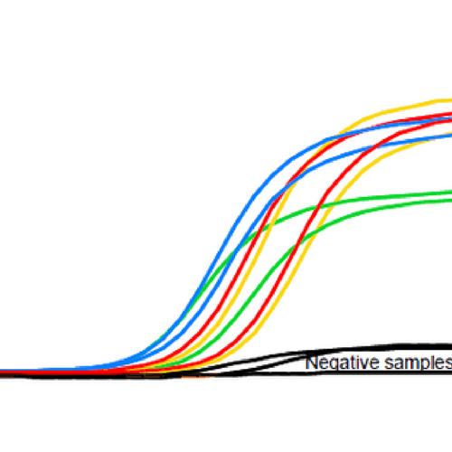 qPCR, HighQu, PCR cuantitativa, quantitative PCR, PCR tiempo real, real-time PCR, RNA, cDNA