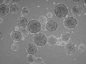 tumorspheres, tumoresferas, promocell, cultuivo celular primario, primary cell culture, cell culture, cultivo celular, tumorsphere Medium XF,
