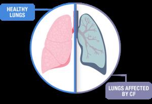 fibrosis quística, cystic fibrosis, genetics, SNPs, CFTR